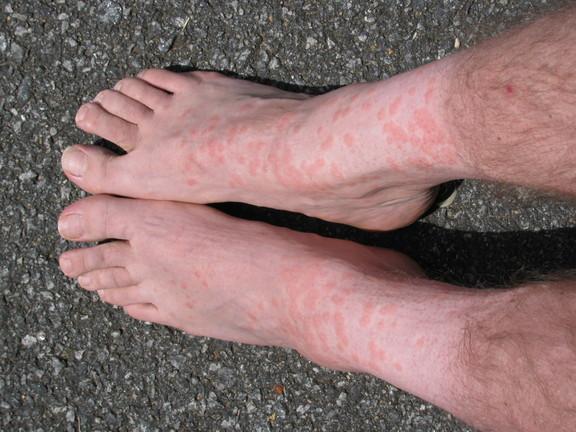 chigger bitten feet